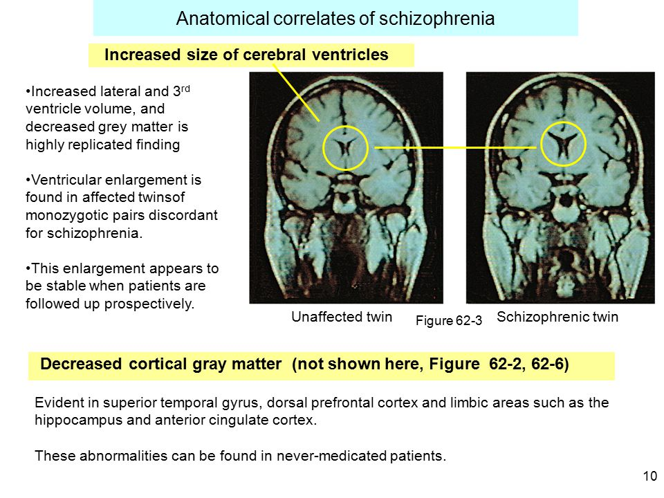 10 Anatomical correlates of schizophrenia Decreased cortical gray matter (not shown here, Figure 62-2, 62-6) Unaffected twin Schizophrenic twin Increased size of cerebral ventricles Figure 62-3 Increased lateral and 3 rd ventricle volume, and decreased grey matter is highly replicated finding Ventricular enlargement is found in affected twinsof monozygotic pairs discordant for schizophrenia.
