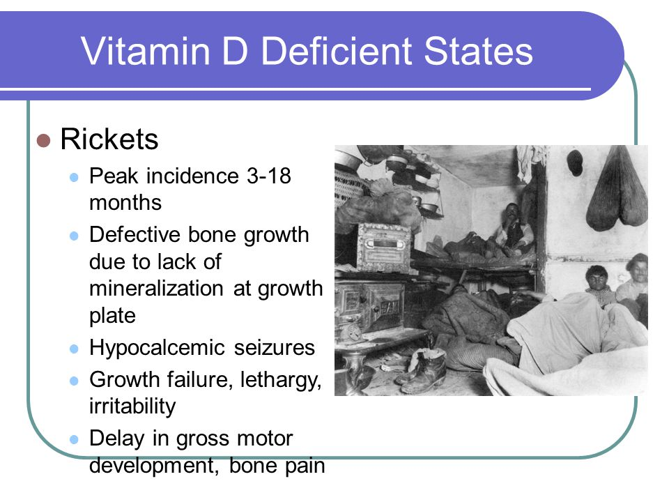 Vitamin D Deficient States Rickets Peak incidence 3-18 months Defective bone growth due to lack of mineralization at growth plate Hypocalcemic seizure