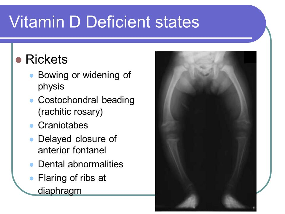 Vitamin D Deficient states Rickets Bowing or widening of physis Costochondral beading (rachitic rosary) Craniotabes Delayed closure of anterior fontan
