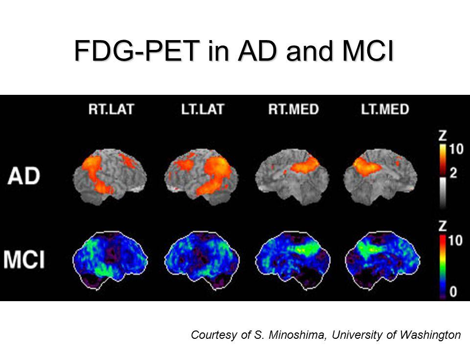 Courtesy of S. Minoshima, University of Washington FDG-PET in AD and MCI