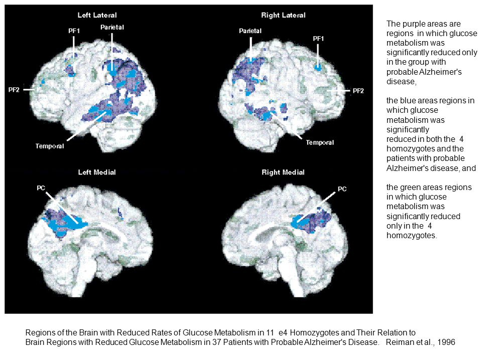Regions of the Brain with Reduced Rates of Glucose Metabolism in 11 e4 Homozygotes and Their Relation to Brain Regions with Reduced Glucose Metabolism in 37 Patients with Probable Alzheimer s Disease.
