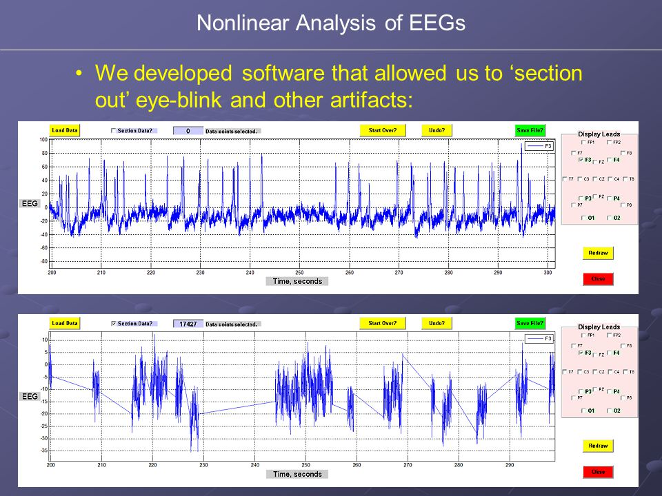 We developed software that allowed us to 'section out' eye-blink and other artifacts: Nonlinear Analysis of EEGs