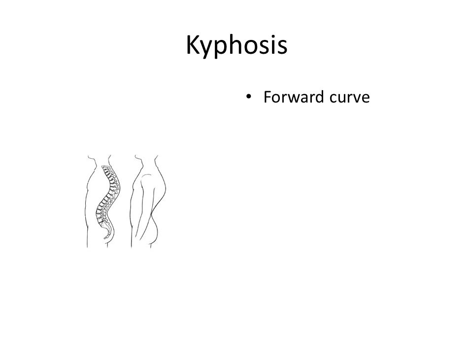 Kyphosis Forward curve