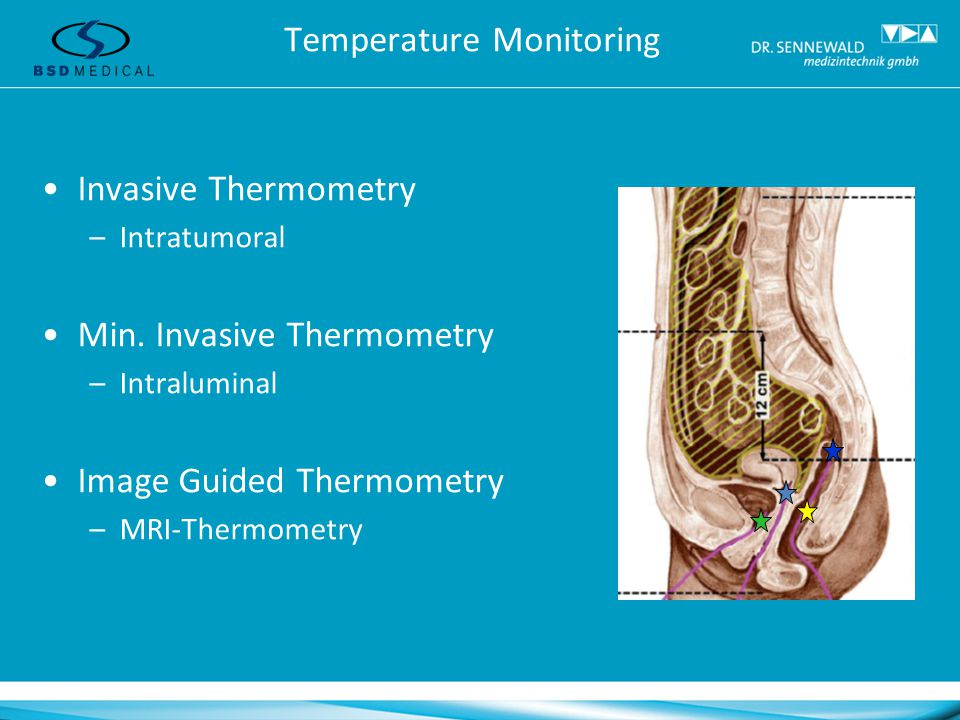 MR Image Guided Hyperthermia