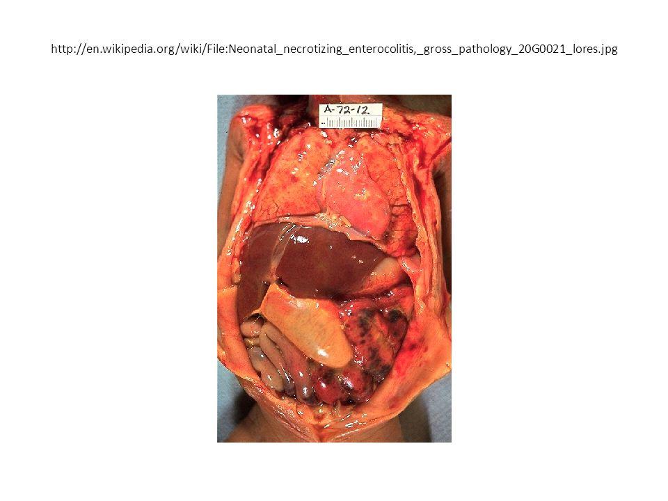 http://en.wikipedia.org/wiki/File:Neonatal_necrotizing_enterocolitis,_gross_pathology_20G0021_lores.jpg
