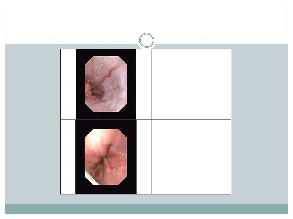 Upper Gastrointestinal Contrast Series: This is used to evaluate the anatomy of the upper GI tract.provide a detailed road map of the patient s anatomy to role out other causes of vomiting.
