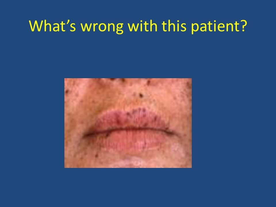 What's wrong with this patient?