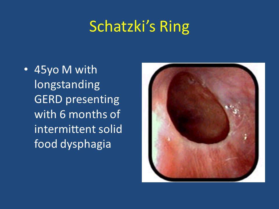 Pericolonic diverticular abscess IF < 3-4 cm: - antibiotics - supportive care IF > 3-4 cm: - CT guided drainage - antibiotics