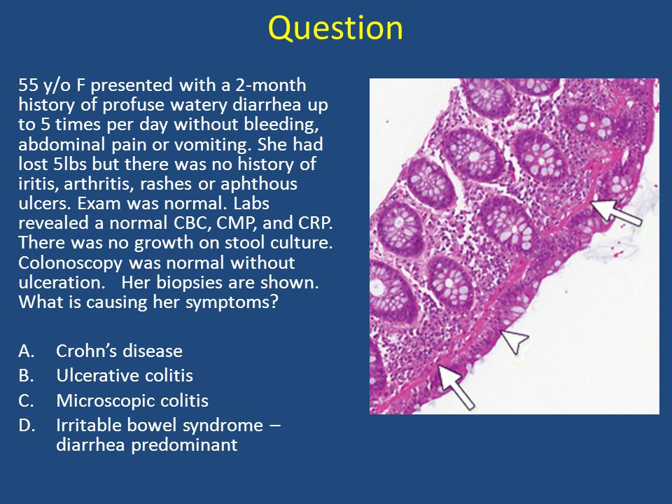 Question 55 y/o F presented with a 2-month history of profuse watery diarrhea up to 5 times per day without bleeding, abdominal pain or vomiting. She