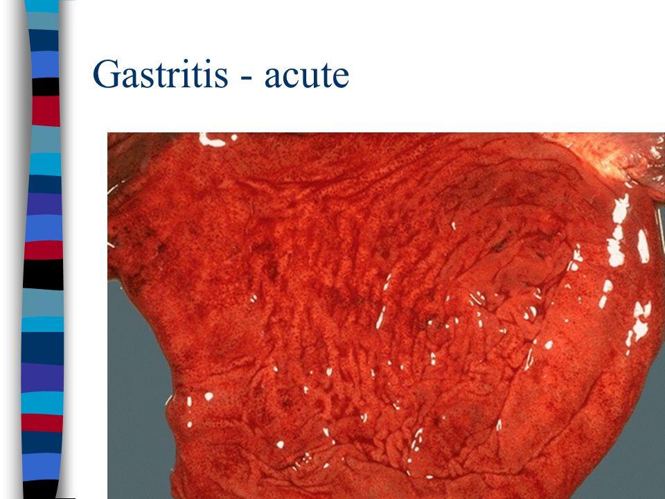 Gastritis - acute