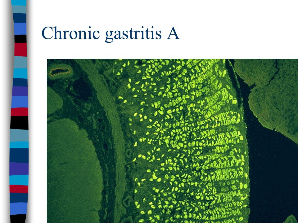 Chronic gastritis A