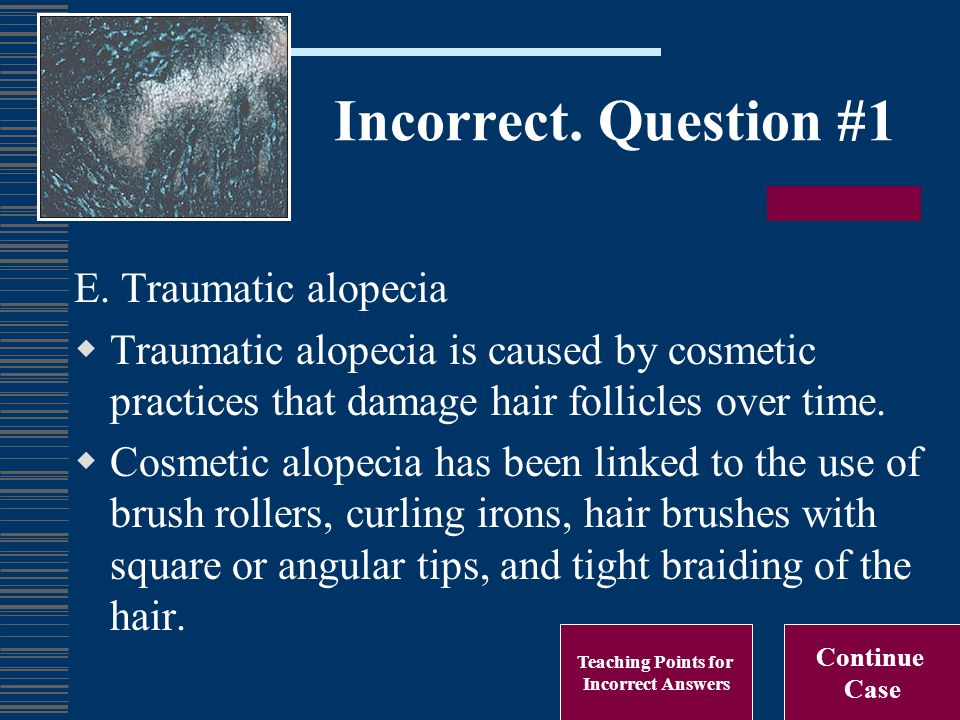 Incorrect. Question #1 E. Traumatic alopecia  Traumatic alopecia is caused by cosmetic practices that damage hair follicles over time.  Cosmetic alo