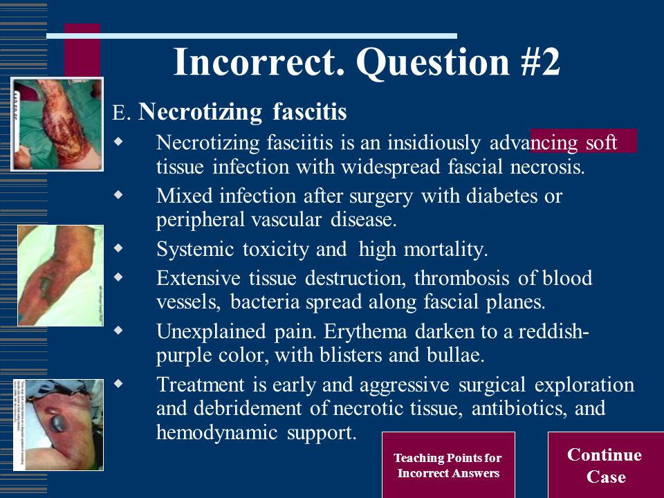 Incorrect. Question #2 E. Necrotizing fascitis  Necrotizing fasciitis is an insidiously advancing soft tissue infection with widespread fascial necro