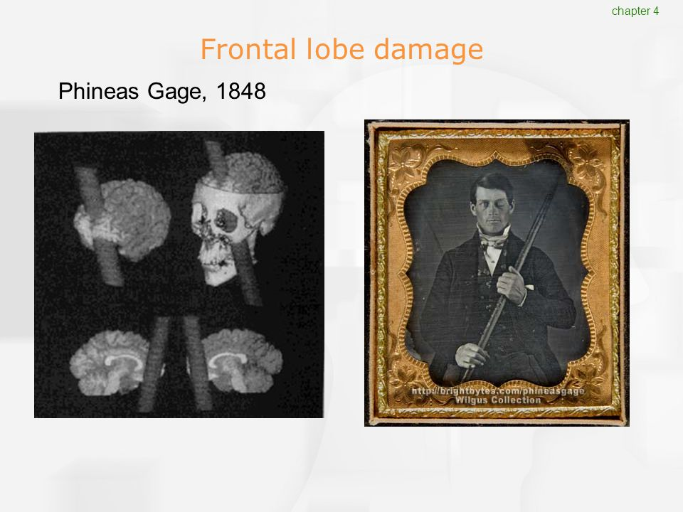 Frontal lobe damage Phineas Gage, 1848 chapter 4