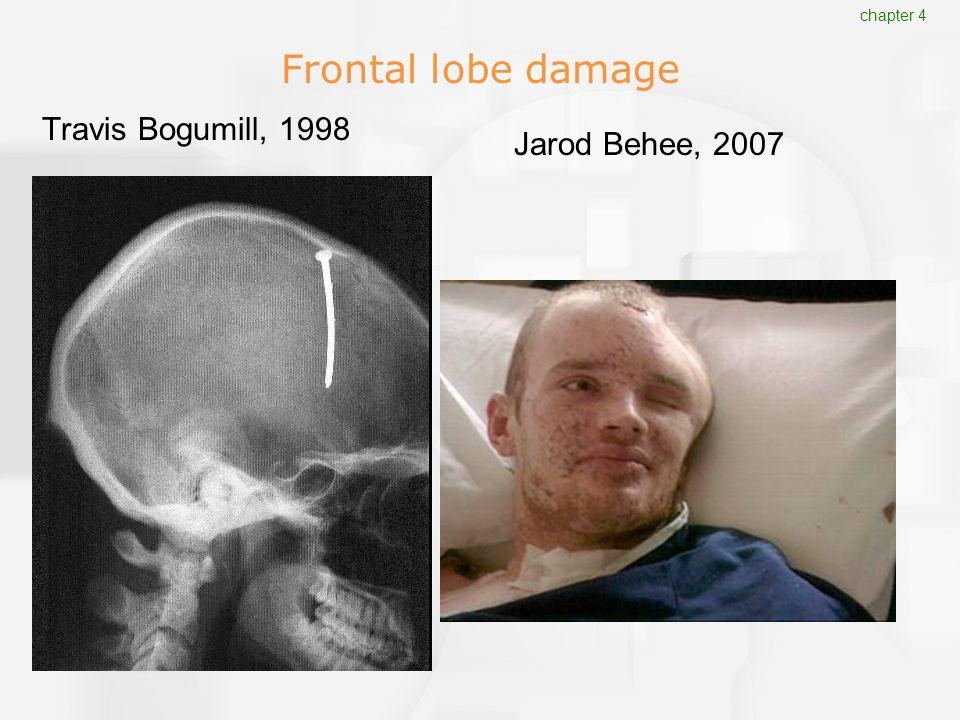 Frontal lobe damage Jarod Behee, 2007 Travis Bogumill, 1998 chapter 4