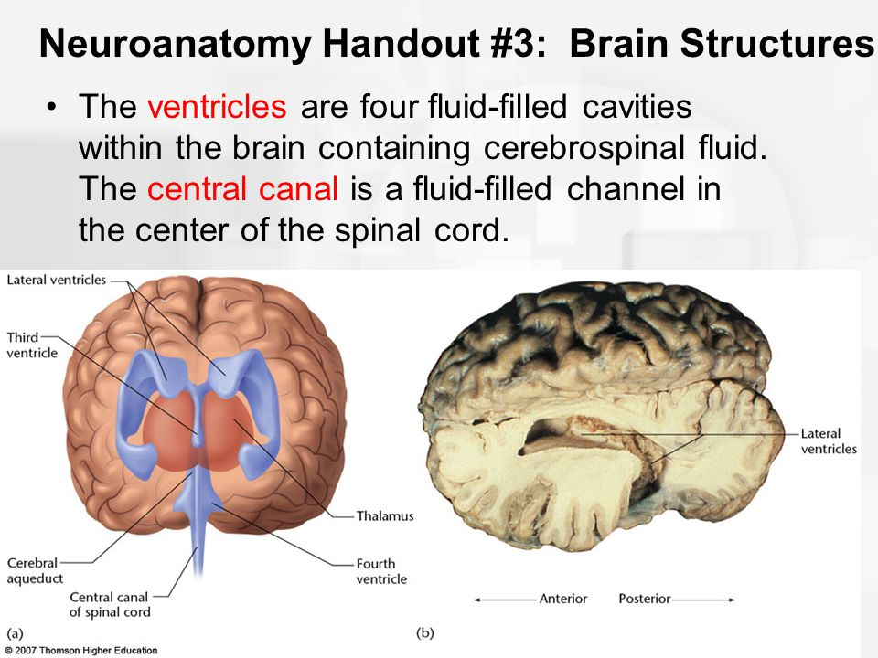 Neuroanatomy Handout #3: Brain Structures The ventricles are four fluid-filled cavities within the brain containing cerebrospinal fluid. The central c