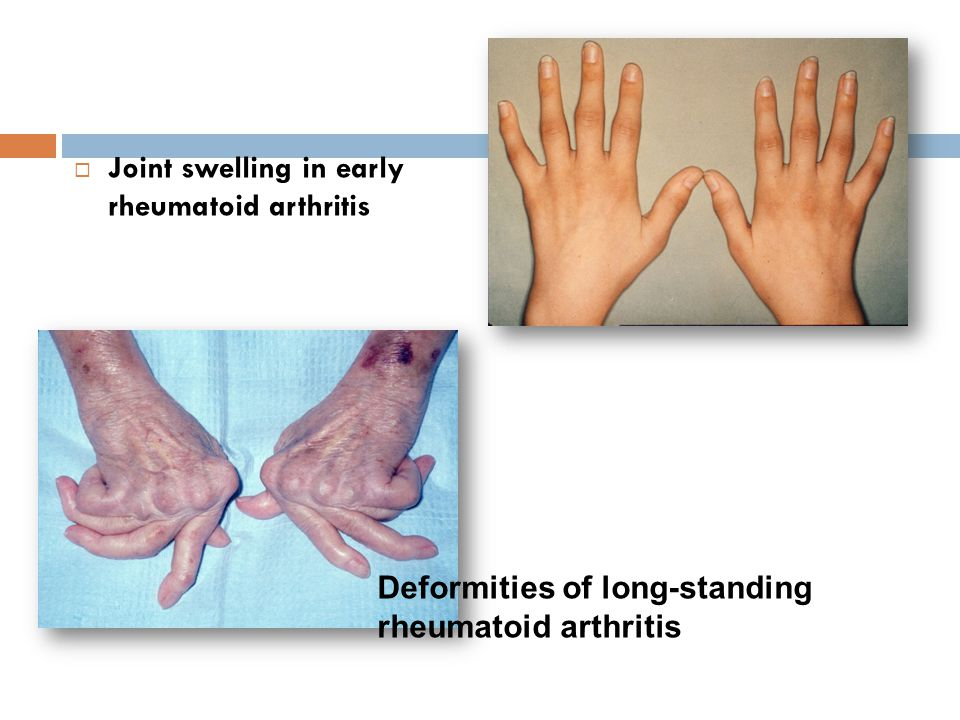  Joint swelling in early rheumatoid arthritis Deformities of long-standing rheumatoid arthritis