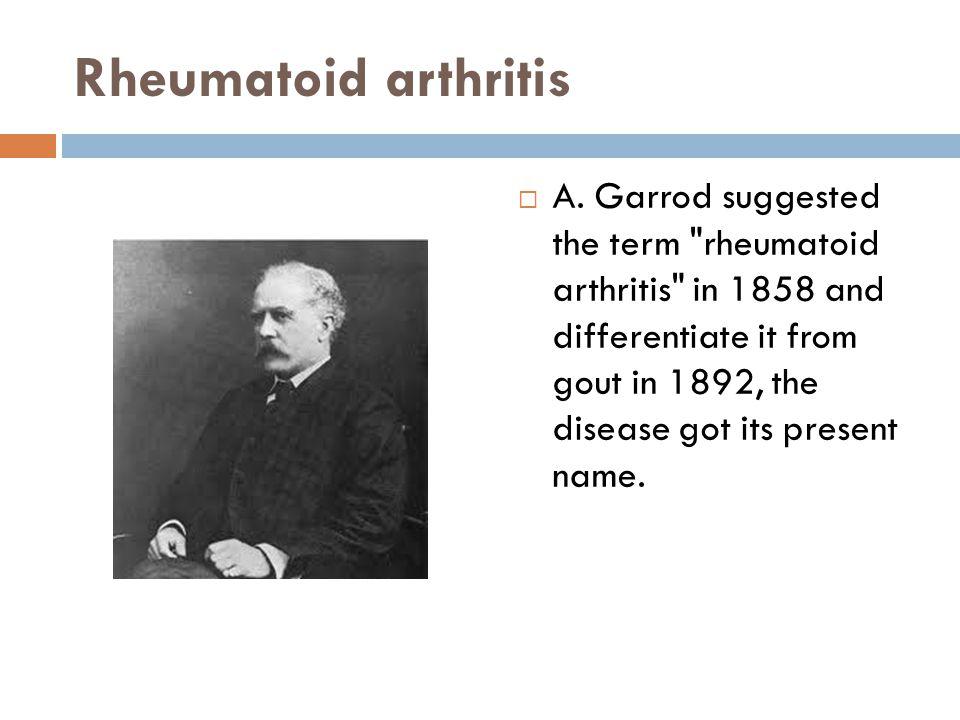 Rheumatoid arthritis  A. Garrod suggested the term