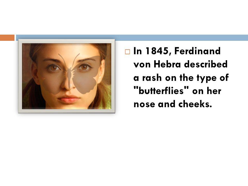  In 1845, Ferdinand von Hebra described a rash on the type of