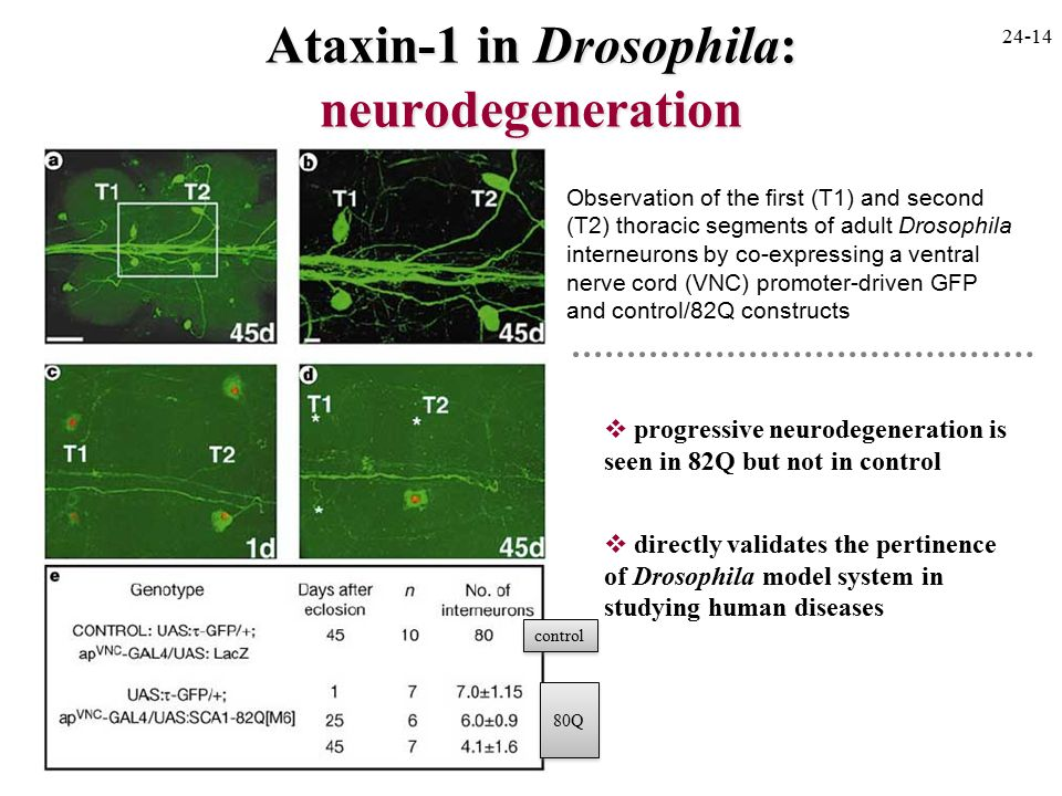 Ataxin-1 in Drosophila: neurodegeneration  progressive neurodegeneration is seen in 82Q but not in control  directly validates the pertinence of Drosophila model system in studying human diseases Observation of the first (T1) and second (T2) thoracic segments of adult Drosophila interneurons by co-expressing a ventral nerve cord (VNC) promoter-driven GFP and control/82Q constructs 24-14 80Q control