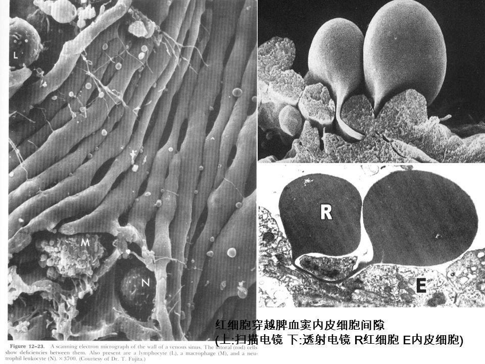 红细胞穿越脾血窦内皮细胞间隙 ( 上 : 扫描电镜 下 : 透射电镜 R 红细胞 E 内皮细胞 )
