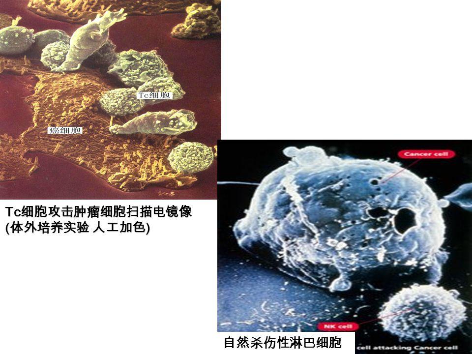Tc 细胞攻击肿瘤细胞扫描电镜像 ( 体外培养实验 人工加色 ) 自然杀伤性淋巴细胞