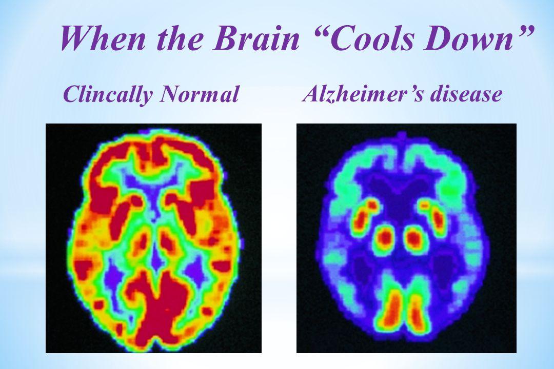 Clincally Normal Alzheimer's disease When the Brain Cools Down