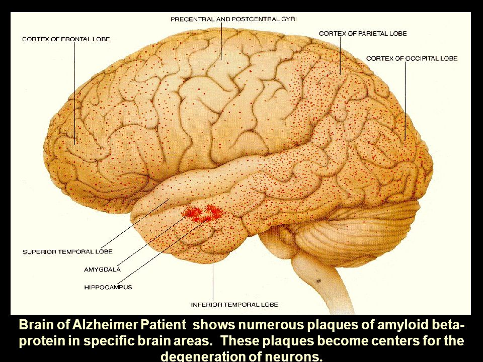 Brain of Alzheimer Patient shows numerous plaques of amyloid beta- protein in specific brain areas.