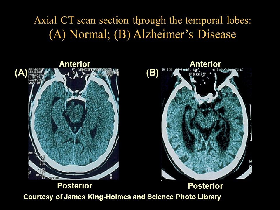 . Courtesy of James King-Holmes and Science Photo Library Axial CT scan section through the temporal lobes: (A) Normal; (B) Alzheimer's Disease Anteri