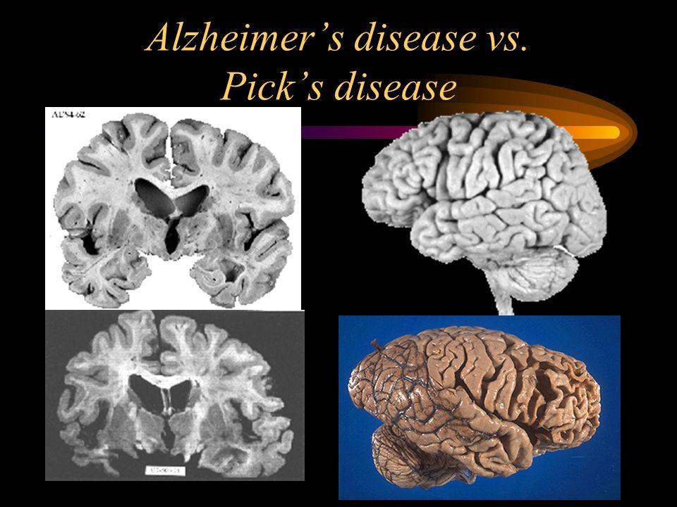 Alzheimer's disease vs. Pick's disease