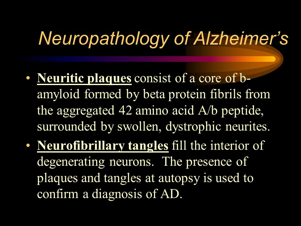 Neuropathology of Alzheimer's Neuritic plaques consist of a core of b- amyloid formed by beta protein fibrils from the aggregated 42 amino acid A/b peptide, surrounded by swollen, dystrophic neurites.