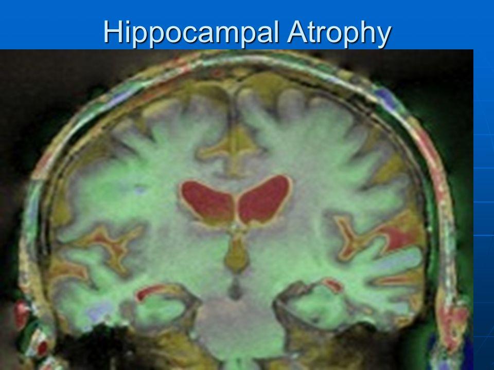 Hippocampal Atrophy