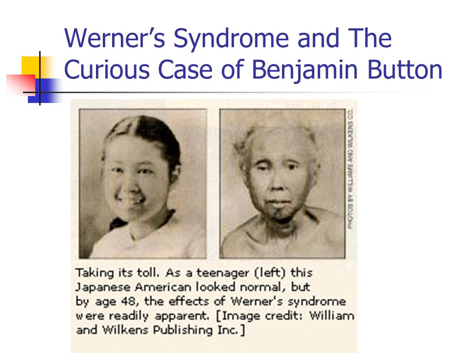 Werner's Syndrome and The Curious Case of Benjamin Button