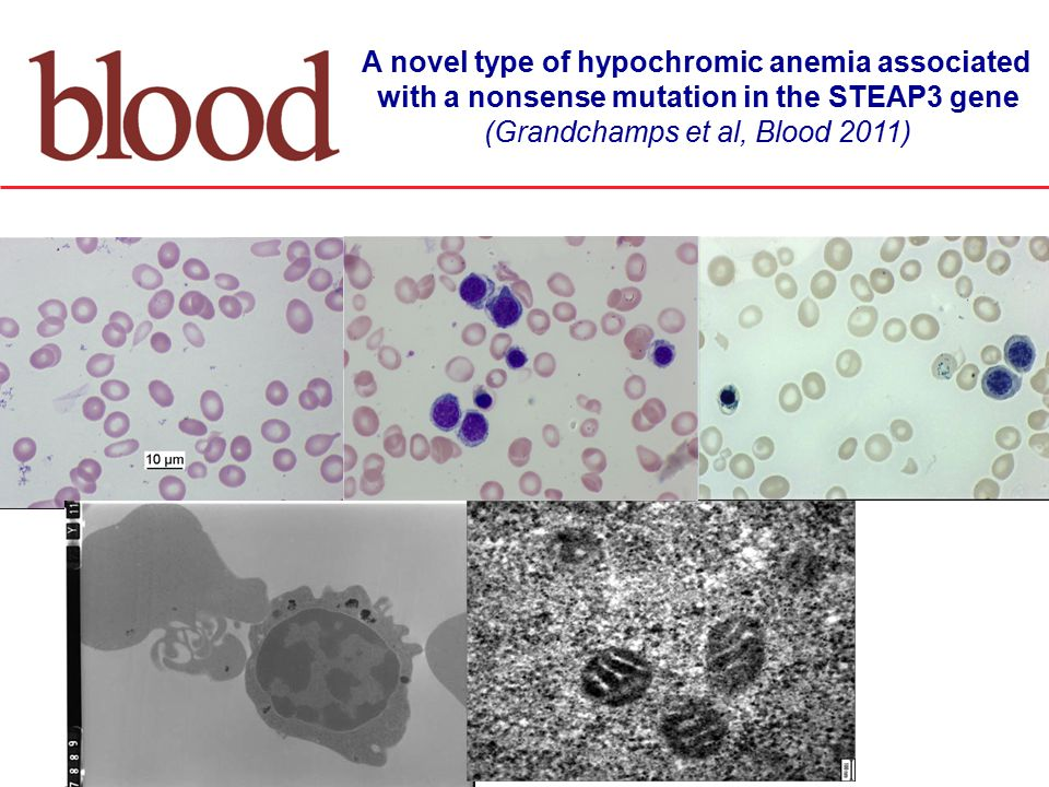 A novel type of hypochromic anemia associated with a nonsense mutation in the STEAP3 gene (Grandchamps et al, Blood 2011)