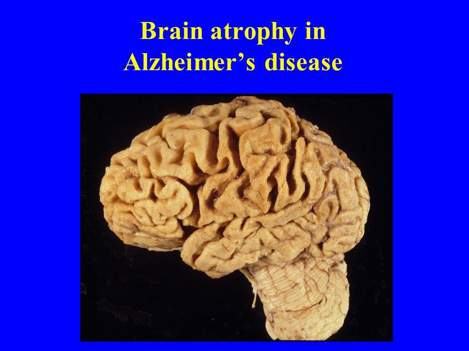 Brain atrophy in Alzheimer's disease