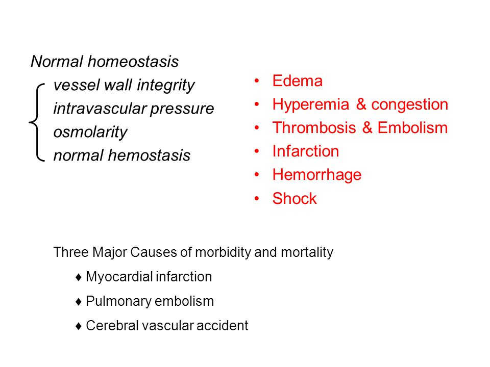 Normal homeostasis vessel wall integrity intravascular pressure osmolarity normal hemostasis Edema Hyperemia & congestion Thrombosis & Embolism Infarction Hemorrhage Shock Three Major Causes of morbidity and mortality ♦ Myocardial infarction ♦ Pulmonary embolism ♦ Cerebral vascular accident