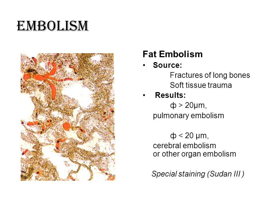 Embolism Fat Embolism Source: Fractures of long bones Soft tissue trauma Results: ф > 20μm, pulmonary embolism ф < 20 μm, cerebral embolism or other o