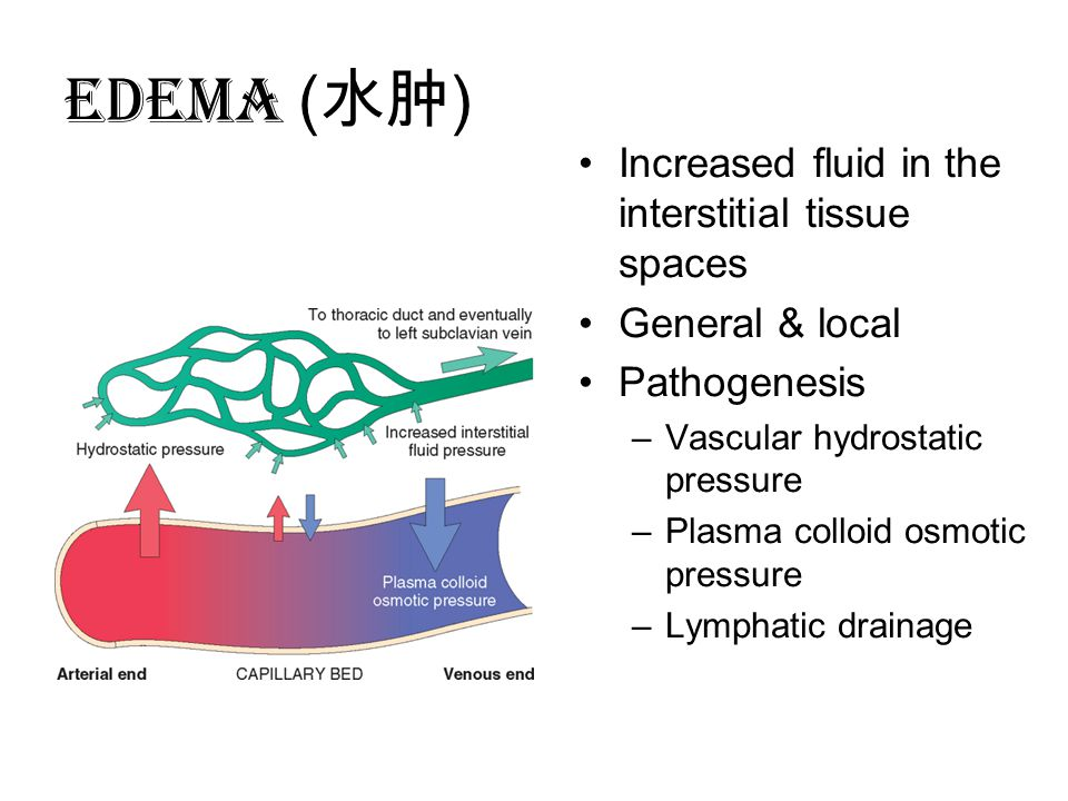 EDEMA ( 水肿 ) Increased fluid in the interstitial tissue spaces General & local Pathogenesis –Vascular hydrostatic pressure –Plasma colloid osmotic pressure –Lymphatic drainage