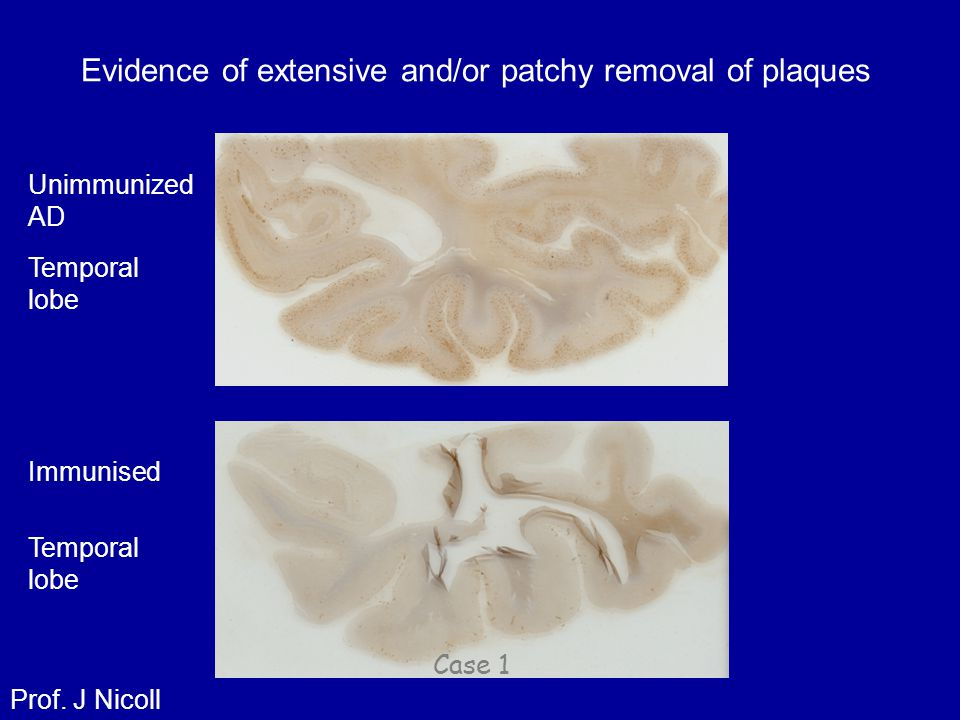 Evidence of extensive and/or patchy removal of plaques Temporal lobe Case 1 Unimmunized AD Prof. J Nicoll Immunised