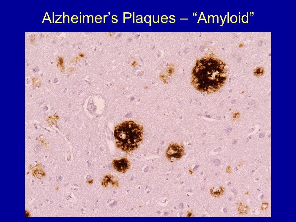 """Alzheimer's Plaques – """"Amyloid"""""""
