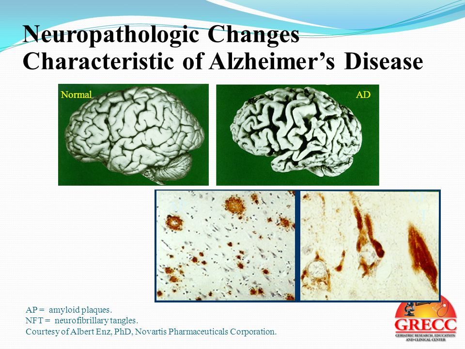 Neuropathologic Changes Characteristic of Alzheimer's Disease Normal AP = amyloid plaques.