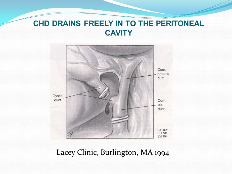 CHD DRAINS FREELY IN TO THE PERITONEAL CAVITY Lacey Clinic, Burlington, MA 1994