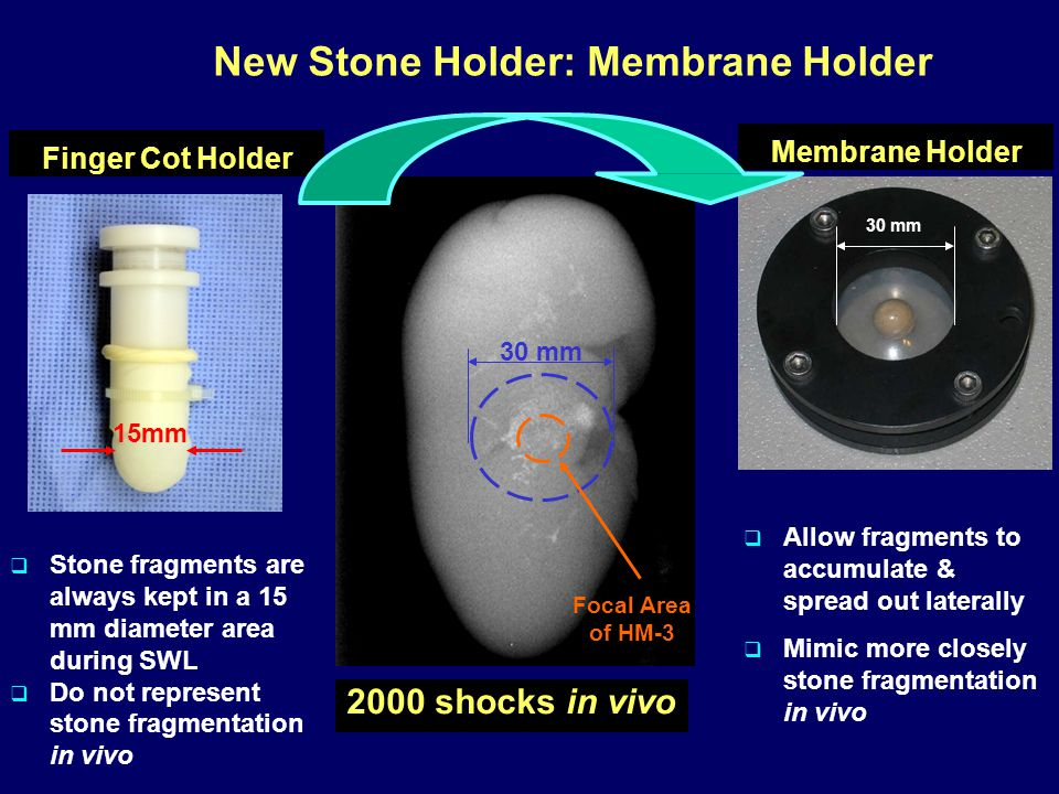 New Stone Holder: Membrane Holder 2000 shocks in vivo 30 mm 15mm Focal Area of HM-3  Stone fragments are always kept in a 15 mm diameter area during SWL  Do not represent stone fragmentation in vivo Finger Cot Holder  Allow fragments to accumulate & spread out laterally  Mimic more closely stone fragmentation in vivo 30 mm Membrane Holder