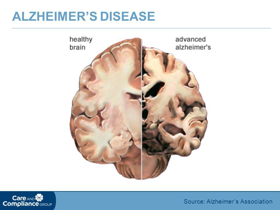 Source: Alzheimer's Association