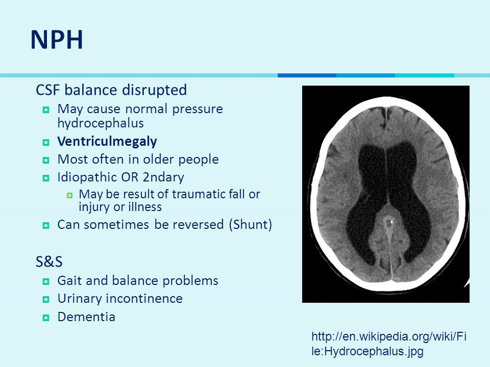  CSF balance disrupted  May cause normal pressure hydrocephalus  Ventriculmegaly  Most often in older people  Idiopathic OR 2ndary  May be result of traumatic fall or injury or illness  Can sometimes be reversed (Shunt)  S&S  Gait and balance problems  Urinary incontinence  Dementia http://en.wikipedia.org/wiki/Fi le:Hydrocephalus.jpg