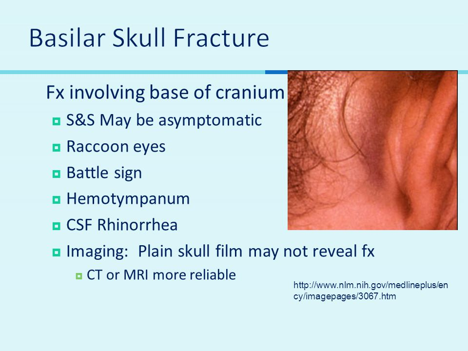  Fx involving base of cranium  S&S May be asymptomatic  Raccoon eyes  Battle sign  Hemotympanum  CSF Rhinorrhea  Imaging: Plain skull film may