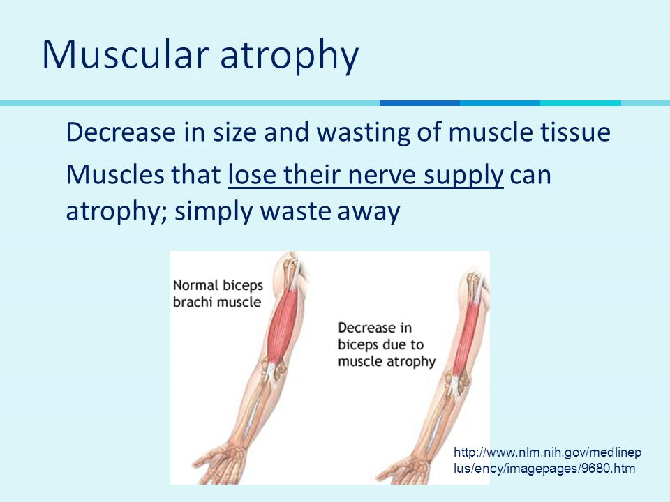  Decrease in size and wasting of muscle tissue  Muscles that lose their nerve supply can atrophy; simply waste away http://www.nlm.nih.gov/medlinep
