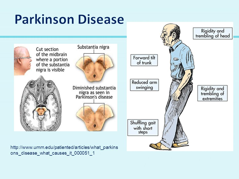 http://www.umm.edu/patiented/articles/what_parkins ons_disease_what_causes_it_000051_1.htm http://students.cis.uab.edu/kelseycp/Parkinson% 27s.html