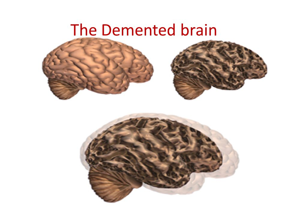 The Demented brain