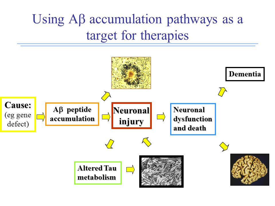 Using A  accumulation pathways as a target for therapies Cause: (eg gene defect) A  peptide accumulation Neuronalinjury Altered Tau metabolism Neuronaldysfunction and death Dementia